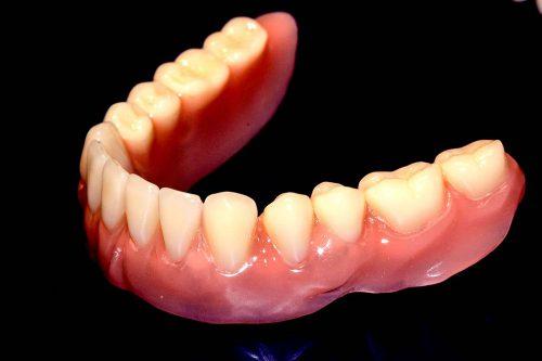 Implantat herausnehmbar